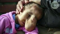 Cette fillette traitée de monstre à cause d'une hernie faciale va prendre sa revanche sur la vie