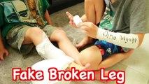 FAKE INJURY PRANK- Fake Broken Arm LEG Toby Fake Sick FUNNY Kids Prank DIY Fake Cast AllToyCollector