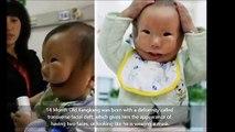 Les médecins ne l'autorisaient pas à voir son bébé, mais quand elle l'a vu, elle s'est évanouie