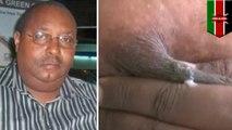 Kenyan pastor has rare disease that makes his breasts produce milk