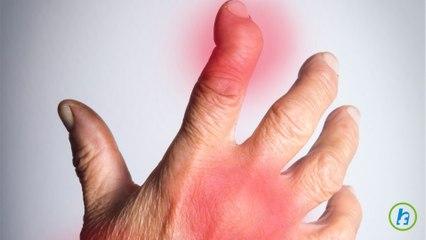 Artrita reumatoida a mainilor