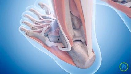 Ruptura tendonului lui Ahile