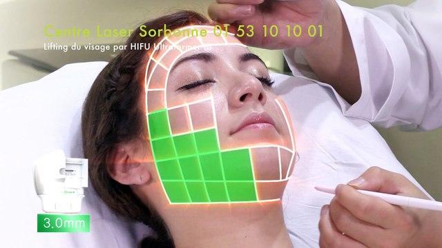 Vidéo Lifting médical du visage par ULTRAFORMER III (HIFU)