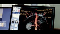 Ablations (2014) - Trailer English Subs