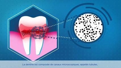 Quelles sont les causes de la sensibilité dentaire?