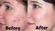 How to Get Rid of Acne Scars Overnight | Get Rid of Acne Scars Naturally At Home - Tips To Get Rid of Acne Scars