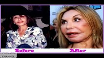 200 Picture of plastic surgery fail before after    Worst Plastic Surgery Ever    Oops 2015