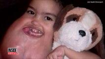 Cet enfant de 3 ans se fait opérer d'une tumeur au visage énorme!