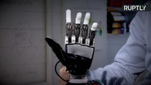 Bionic Arm Set to Hit Market Could Revolutionize Prosthetics