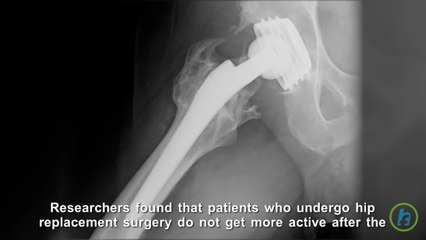 Increase in Exercise After Hip Replacement Surgery Not Common, Study finds