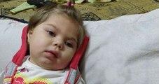 Görme, Konuşma ve Yürüme Yetisini Kaybeden Berre Bebek Yardım Bekliyor