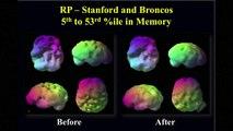 Brain Health Tips from Dr Daniel Amen SuperheroYou YouTube