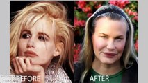 Fail Pictures of celebrity plastic surgery gone wrong    Celebrity Fail moment compilation