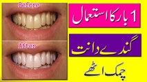 Whiten Teeth At Home | Teeth Whitening Tips In Urdu | Hindi || Natural Whiten Teeth