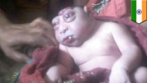 Woman in India gives birth to deformed 'alien' baby