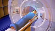 Cancer du sein : la radiothérapie per-opératoire (RPO)