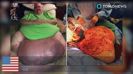 Homem tem tumor de 45 quilos removido da barriga.
