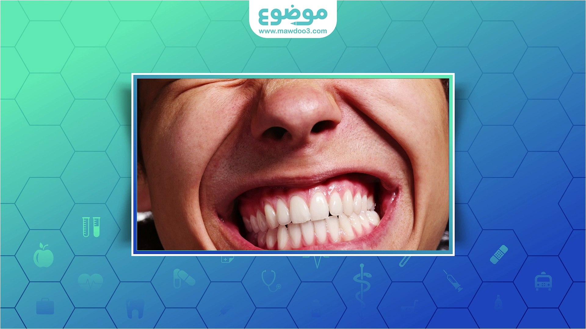 #موضوع: الضغط على الأسنان اثناء النوم