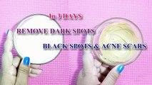 In 3 DAYS- REMOVE DARK SPOTS, BLACK SPOTS & ACNE SCARS | 100% Natural Treatment For Dark Spots http://BestDramaTv.Net