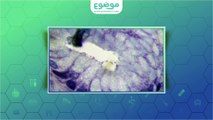 #موضوع: علاج التهاب فم المعدة