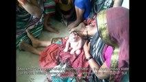 Né avec une maladie génétique très rare, ce bébé est vénéré en Inde