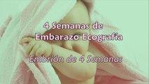 4 Semanas de Embarazo - Ecografía 4 Semanas de Gestación-J5