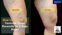 How to Get Rid of Varicose Veins Naturally In Easy Steps