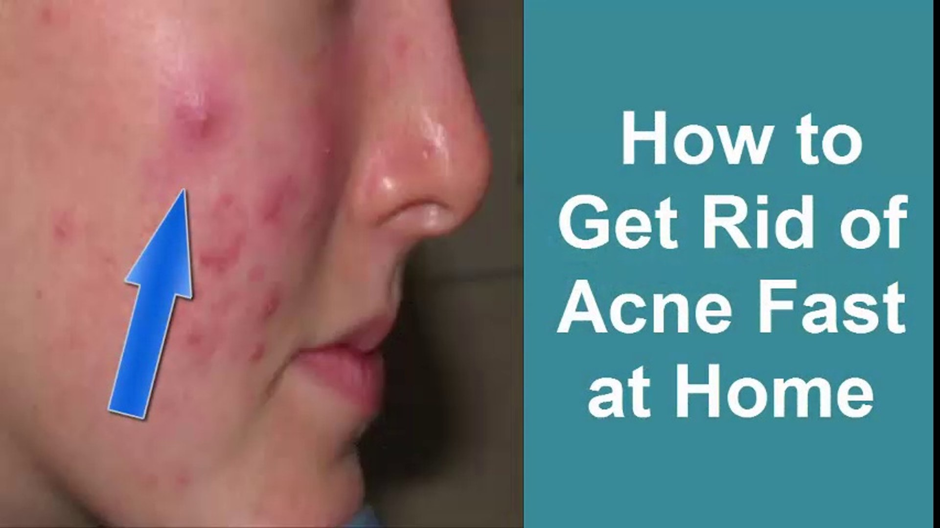 How To Get Rid Of Acne Fast At Home Overnight Girls Face Beauty