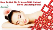 How To Get Rid Of Acne With Natural Blood Cleansing Pills?