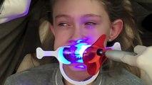 Pose dun Appareil Dentaire - Appareil-dentaire info