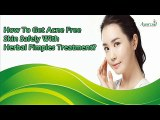 How To Get Acne Free Skin Safely With Herbal Pimples Treatment