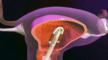 Le dispositif intra-utérin, expliqué en vidéo