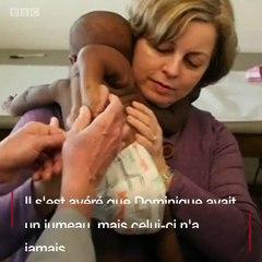 Découvrez l'extraordinaire histoire de Dominique, un bébé née avec 04 jambes et 02 colonnes vertébrales