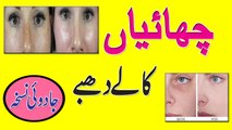 How To Remove Dark Spots On Face Fast || Remove Freckles Tips In Hindi | Urdu