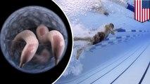 Diarrhea-causing Crypto parasite on the rise in U.S. pools, CDC warns - TomoNews