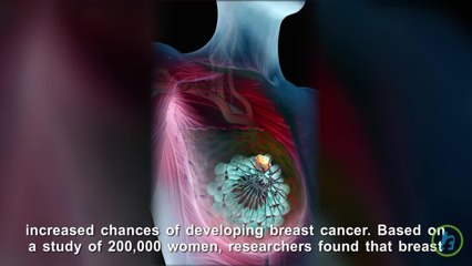 Breast Density Could Be Leading Indicator of Cancer Risk