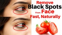 How to get clear flawless glowing skin remove acne and dark spots