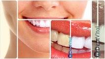 DentVital Klinik | İmplant Diş Tedavisi; Diş İmplantı, Zirkonyum, Lamina, Empress diş uygulamaları