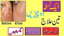 How To Remove Pigmentation Freckles And Acne Scars Instantly