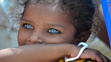 Dünyadaki En Tuhaf Gözlere Sahip 10 İnsan