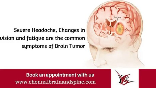 Brain Tumor Treatment in Chennai - Brain Tumor Symptoms - Brain Tumor  Surgery in Tamil nadu, India