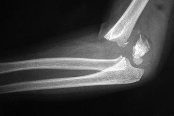 Fracturas más habituales en los huesos del bebé