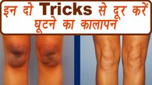 Knees Blackness removal DIY pack | घूटने का कालापन | How to remove knee blackness | BoldSky