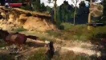 Confira minha transmissão do meu PlayStation 4! #PS4live (The Witcher 3: Wild Hunt  Complete Edition (2)