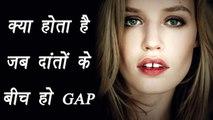 Gap between teeth; Know interesting facts | क्या होता है जब दांतों के बीच हो गैप | Boldsky