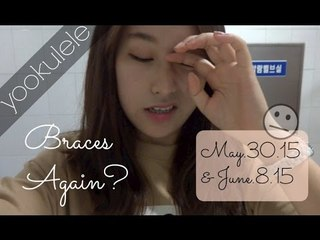 Braces All Over Again???