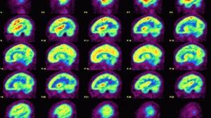 California Doctors Hope To 'Rewire' Depressed People's Brains
