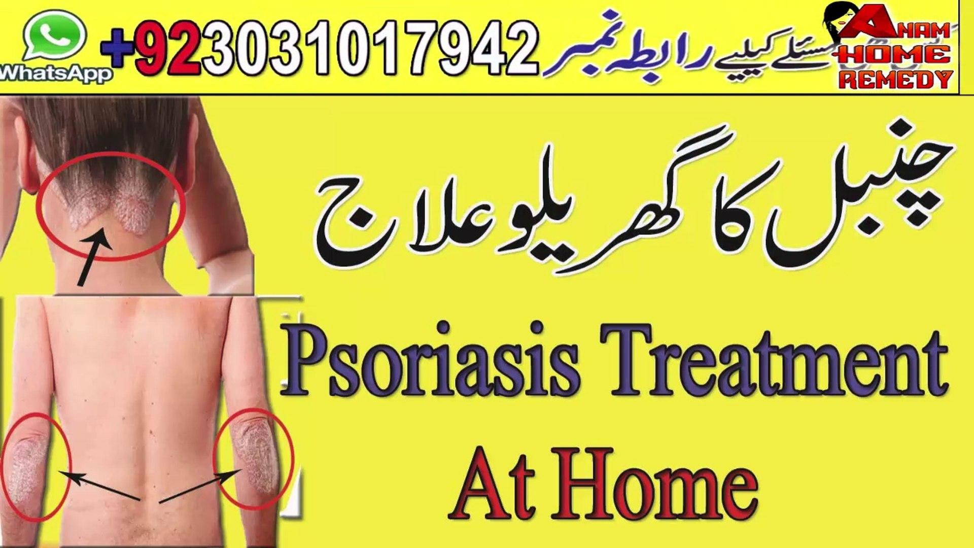 Psoriasis Treatment At Home    Chanbal Ka Garelu Ilaj
