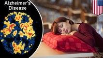 Kurang tidur malam dapat menyebabkan Alzheimer - Tomonews