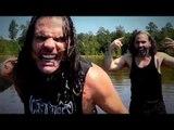 Broken Matt™ wrestling: Healing Of Jeff Hardy